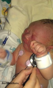 My son, one day old in the NICU. He is still on the blue scale but the doctors felt he was doing well.